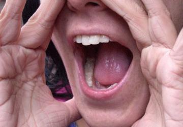 Afonia: sintomi e rimedi