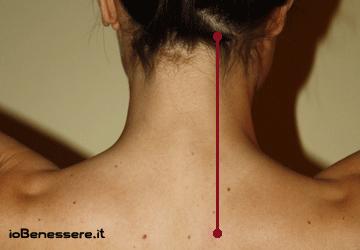 Cervicale: cura e rimedi per la cervicalgia