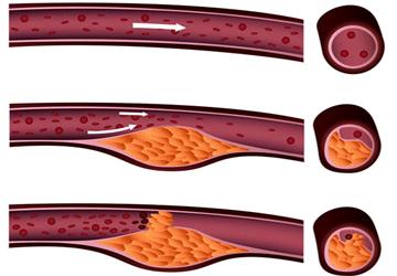 Colesterolo alto rimedi