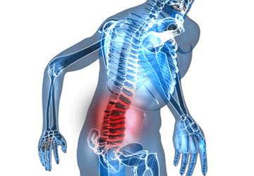 Mal di schiena: test per localizzarlo