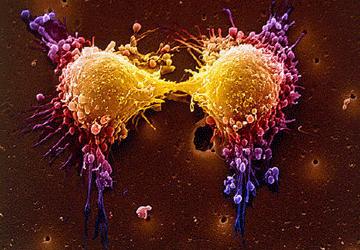 Nuova cura tumori