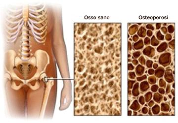 Osteoporosi: cause, sintomi, cure e rimedi