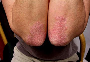 Rimedi di gente di unguento di eczema