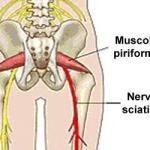 Sindrome del piriforme