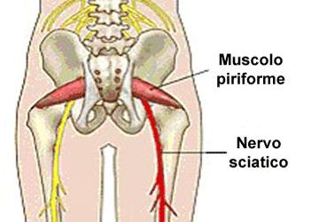 Sindrome del piriforme e sciatica