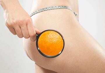 Cellulite rimedi e cause: come combatterla per non averla mai più