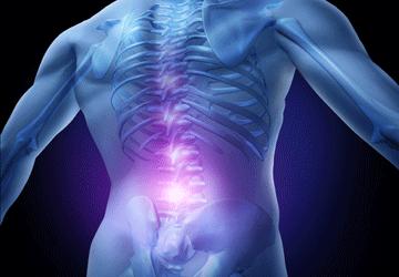 Lombalgia: sintomi, cura, rimedi ed esercizi per il dolore lombare