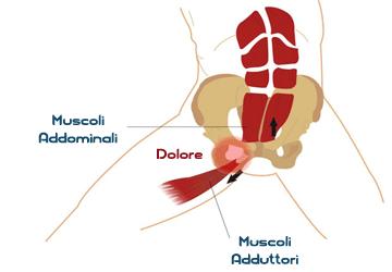 Pubalgia: sintomi, cura, rimedi ed esercizi