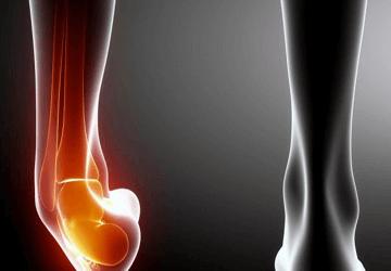 Distorsione caviglia: riabilitazione, esercizi e tempi di recupero