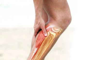 Crampi Muscolari: sintomi e rimedi