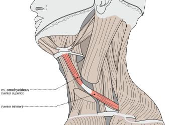 Muscolo Omoioideo: dolore cervicale, mal di testa, vertigini e ccsvi