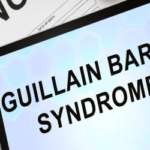 Sindrome di Guillain Barré