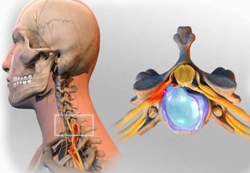 Il nodo di linfa su un collo fa male