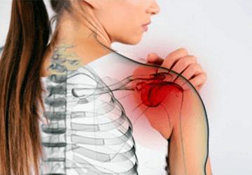 Spalla congelata: sintomi, cura e riabilitazione per la capsulite adesiva