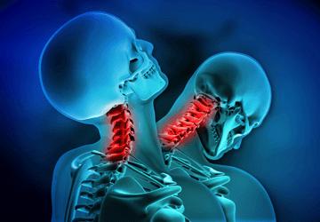 Colpo di frusta: sintomi, cura, rimedi e riabilitazione corretta