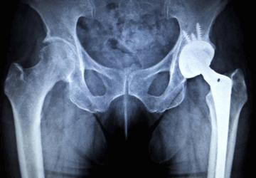 Protesi d'anca: tutto quello che devi sapere sulla protesi d'anca