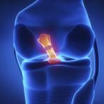 Legamento crociato anteriore rotto o lesionato