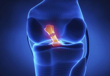 Legamento crociato anteriore: sintomi lesione, operazione e riabilitazione